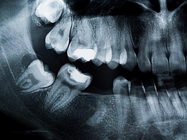 歯ぎしりや食いしばり